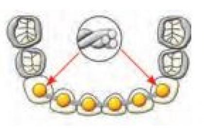 Bondable Lingual Retainer Wire (20/pk)